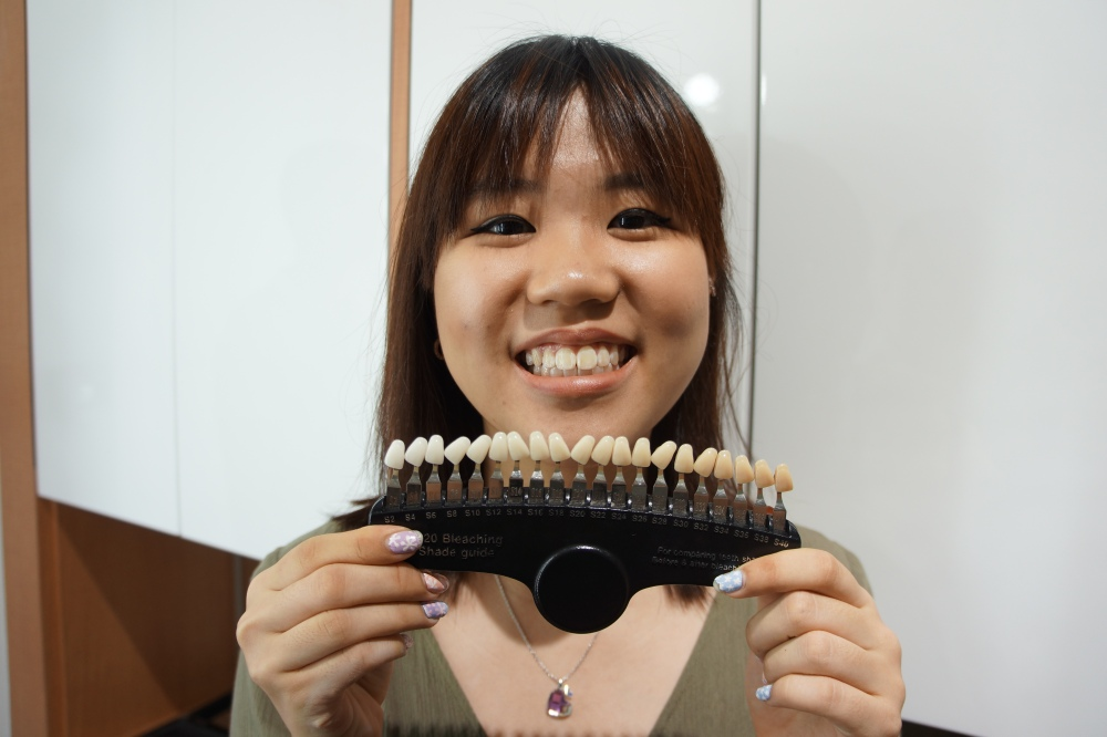 The smile bar: teeth whitening
