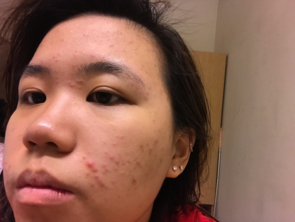 dealing with an acne breakout