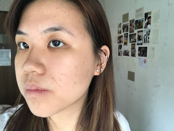 Dealing with acne